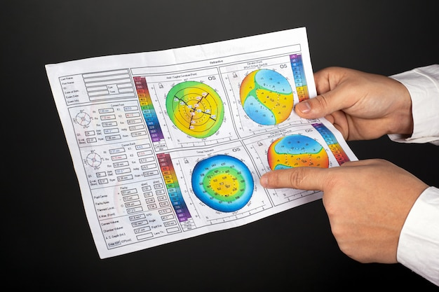 Doctor ophthalmologist shows corneal topography eyes with keratoconus on a dark wall close-up.