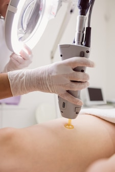 Doctor performing laser hair removal on female patient skin in clinic