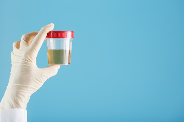 Doctor's gloved hand holds a transparent container with a urine test
