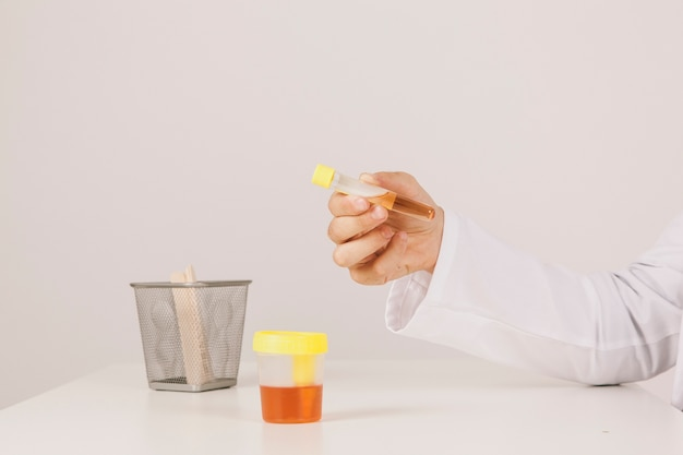 Doctor's hand making tests with urine