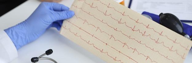 医師の手は、患者が座っている横の心電図の結果を保持します。心臓血管系の概念の検討。
