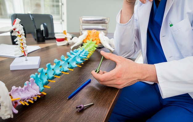 Doctor show polyaxial screw on the spine model. spine fixation systems