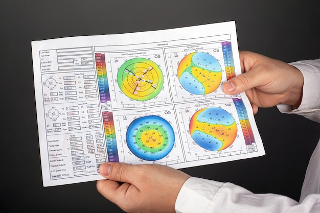 Доктор показывает топографию роговицы. болезнь роговицы дистрофия глаз кератоконус.
