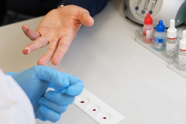 Doctor taking an analysis, test from the finger of patient to determine the blood group and rh factor in the laboratory