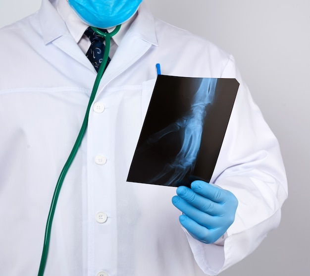 Doctor in a white coat and blue latex gloves holds an x-ray