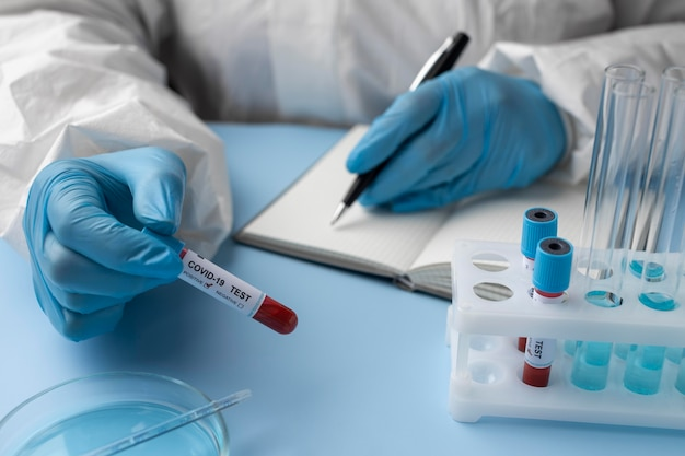 Doctor with blood samples making a medical report