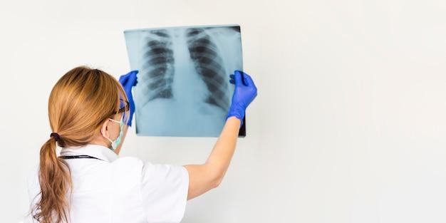 Врач с маской, держащей рентгеновский снимок