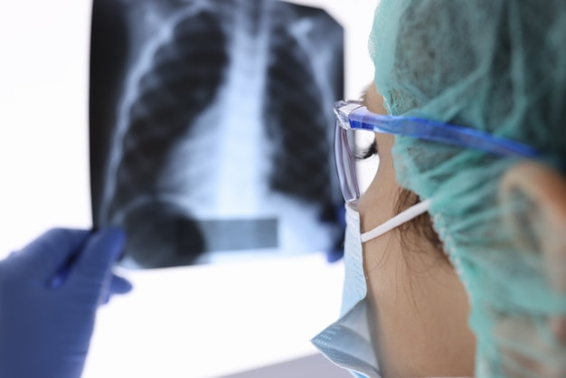 防護マスクと手袋の医師がx線を見ています。