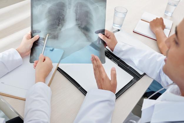 X線について話し合う医師