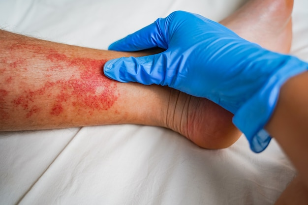 Doctors hand in a glove examining a patient with skin disease red irritation rash and itching on the legs eczema allergies insect bites