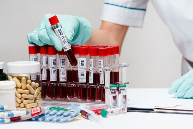 血液検査チューブを扱う女性docxtor
