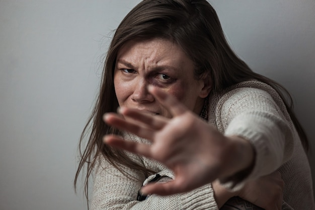 Domestic violence, abuse woman with bruise on face, fear, and defending by hand