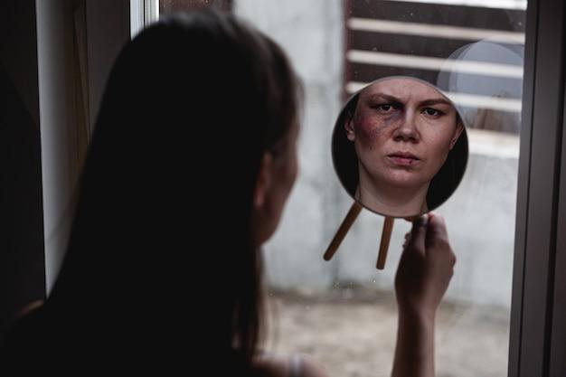 가정 폭력, 창가 얼굴에 멍이 든 학대 여성이 거울을 본다.