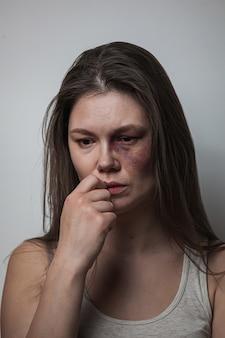 가정 폭력, 얼굴에 멍이 든 여성 학대
