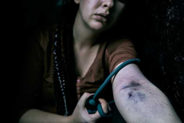 Женщина-наркоманка тянет за руку жгутом колотые раны и синяки на руке самки взрослого д ...
