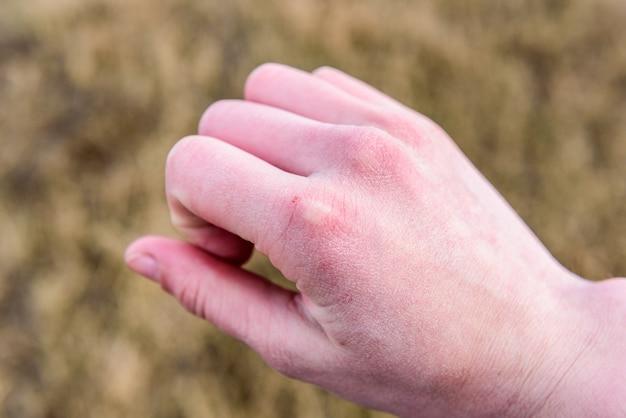 손에 건조하고 갈라진 피부.