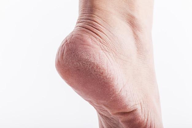 Dry heels woman