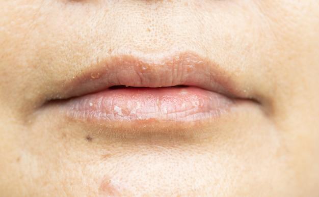 乾燥した唇と剥離
