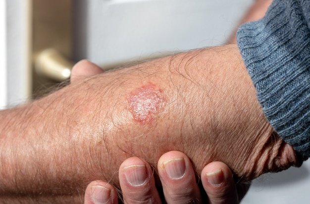 Eczema on the arm of a man