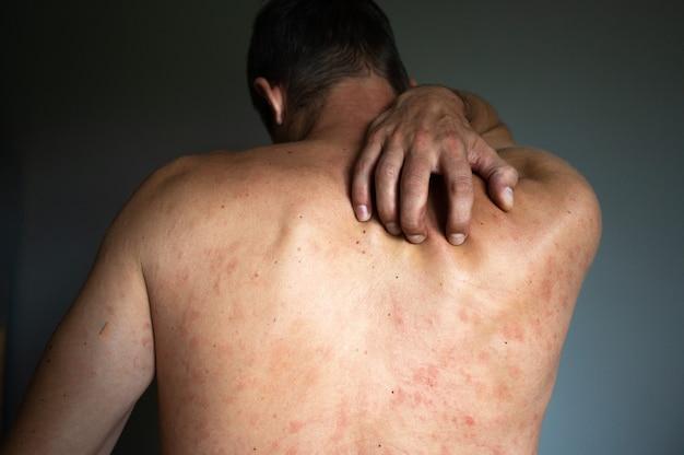 Концепция экземы. человек страдает раздражением кожи, изолированным на сером фоне. зуд в спине с сыпью от аллергии