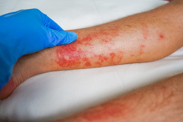 Eczema skin disease on the legs itchy red rashes and spots