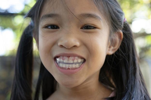 Ортодонтический инструмент ef line для детских зубов