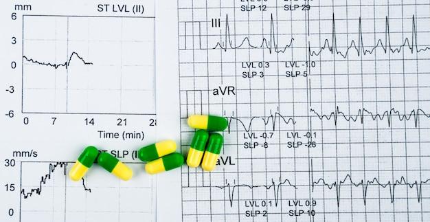 Ekg or ecg (electrocardiogram) graph report paper