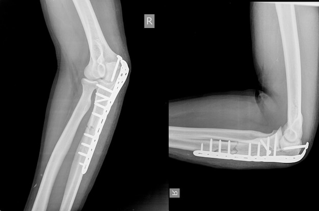 Elbow an olecranon fracture my be held together with plate and screws.
