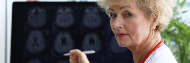 Пожилая женщина-врач показывает ручку на рентгеновском снимке