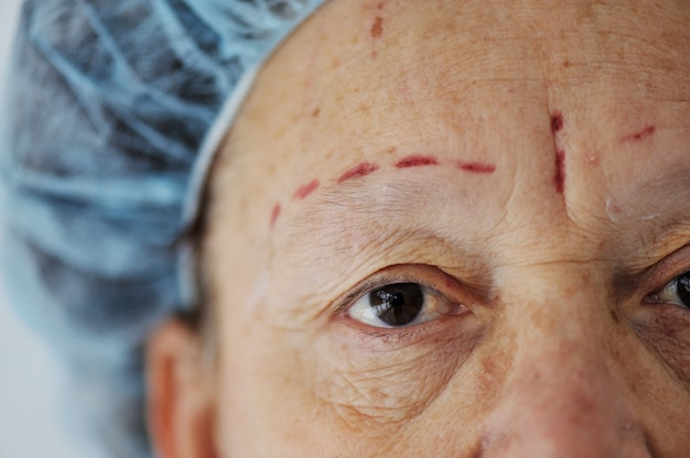 Elderly woman getting botox injection procedure