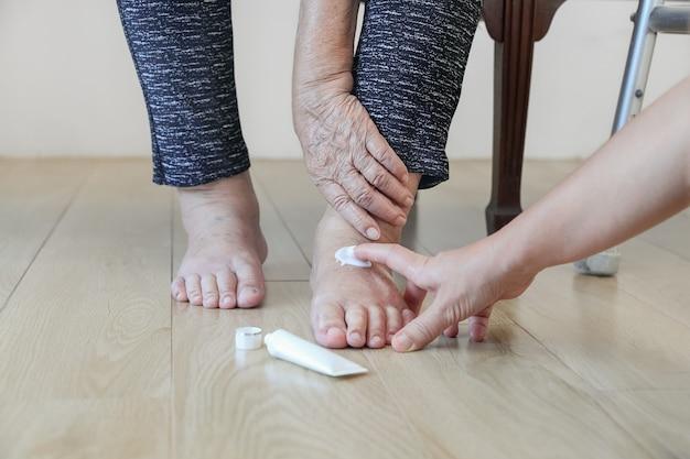 腫れた足にクリームを塗る年配の女性