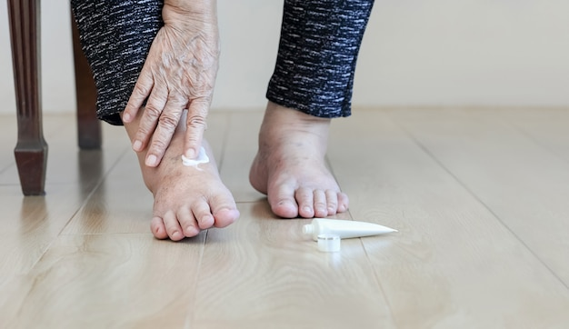 Elderly woman putting cream on swollen feet
