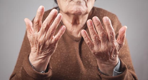 Пожилая женщина, показывая руки.