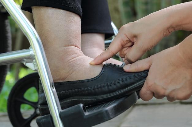 Elderly woman swollen feet press test on wheelchair