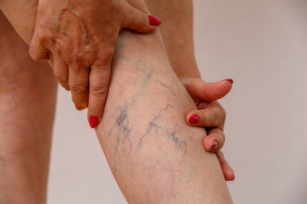 Elderly woman in white panties shows cellulite and varicose veins on a light isolated background.