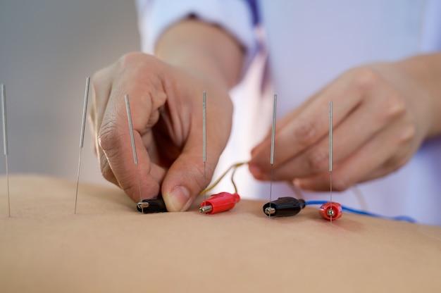 電気鍼療法。伝統的な中国の鍼治療と患者の体への電気鍼療法