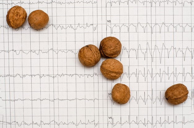 Electrocardiogram graph , heart analysis. walnuts