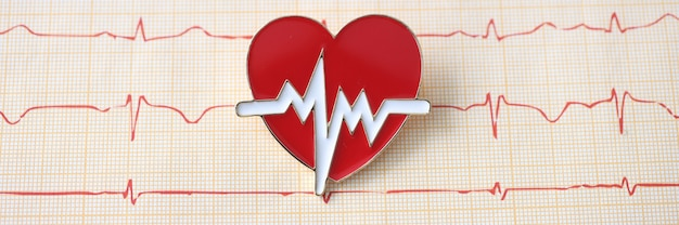 Electrocardiogram with emblem of the heart lie on table at cardiologist