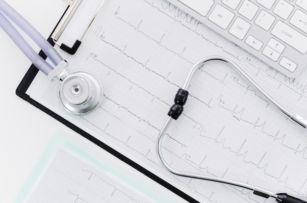 An elevated view of stethoscope over the medical ecg report near the keyboard