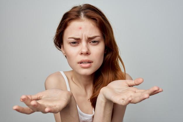 額の皮膚科の不満の皮膚の問題の感情的な女性のにきび。高品質の写真