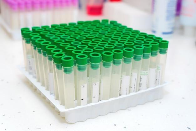 Empty blood testing tube in laboratory Premium Photo