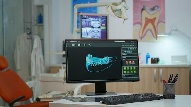 현대적인 시설을 갖춘 사무실에서 컴퓨터에 디지털 엑스레이가 있는 빈 치과 의료실. 컴퓨터 화면에 방사선 사진이 표시된 다음 환자를 위해 준비된 사람이 없는 구강 클리닉