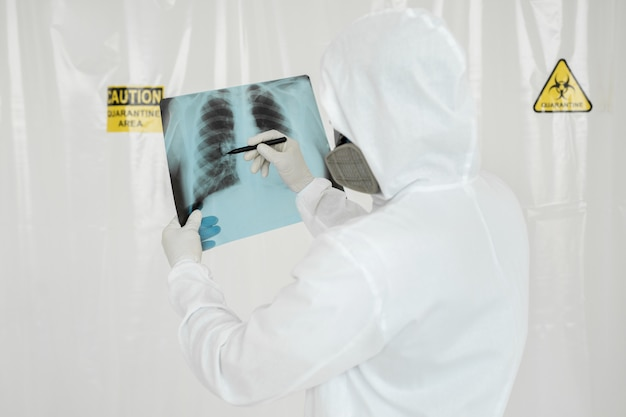 Epidemiologist draws a marker on the x-ray lung lesion covid-19. coronavirus concept