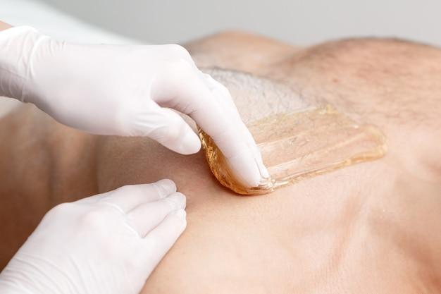 Эпиляция груди молодого мужчины жидкой восковой пастой руками косметолога в салоне красоты
