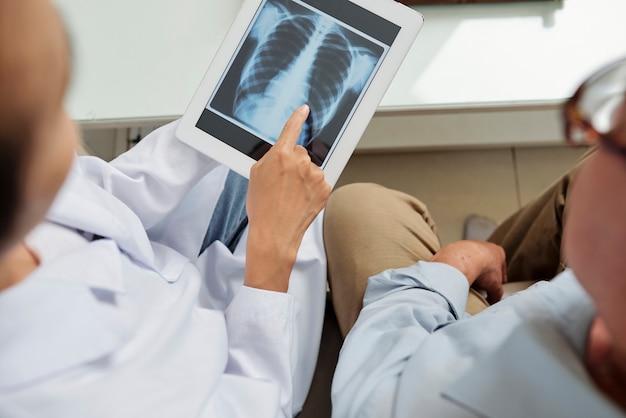 肺のオンラインx線画像の検査