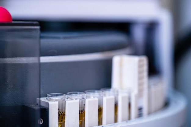 Исследование мочи в лаборатории, крупным планом. пробирки с мочой.