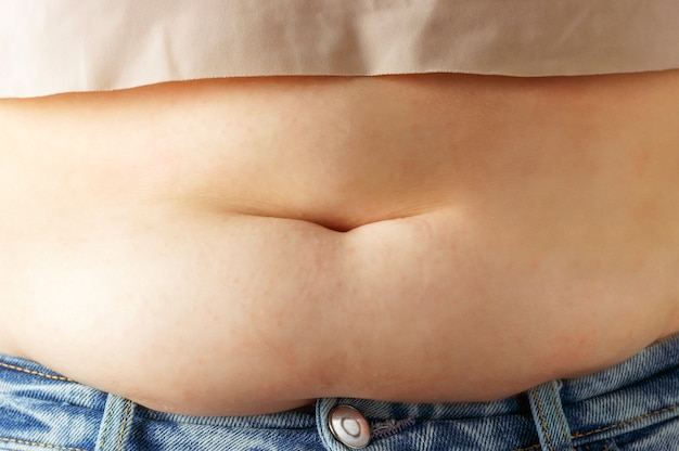 Excess fat on abdomen close up, the concept of weight loss