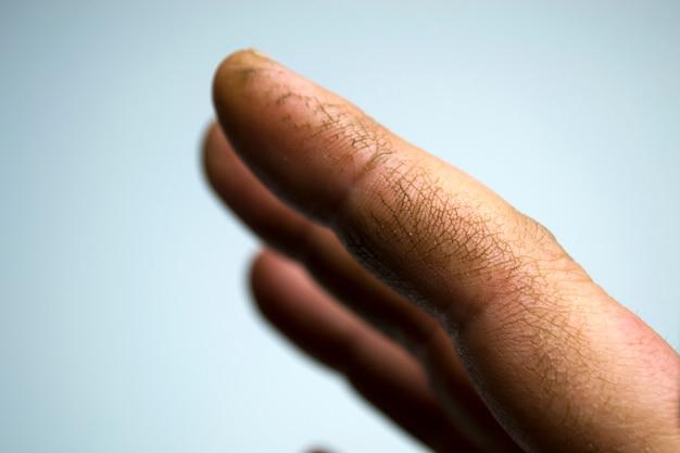 Чрезвычайно сухая обезвоженная и потрескавшаяся кожа мужской руки с отслаивающимися фрагментами эпидермиса ...