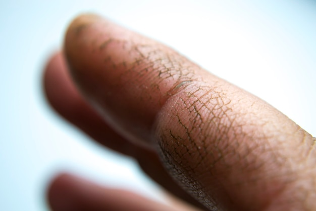 Extremely dry dehydrated and cracked skin of a mans hand with fragments of epidermis that exfoliate ...