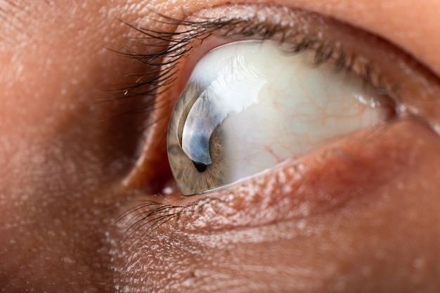 Eye with corneal dystrophy closeup, keratoconus disease thinning of the cornea.